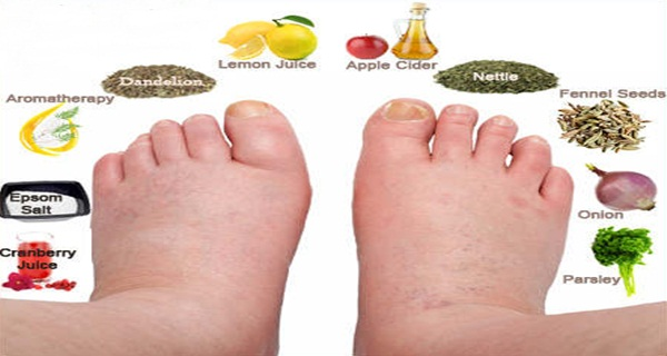 how to make swollen feet go down