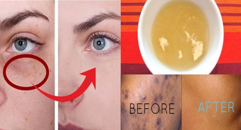 how to get rid of white head spots