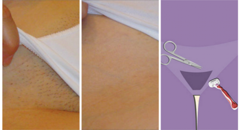 Remove Unwanted Hair Forever In Intimate Parts With This