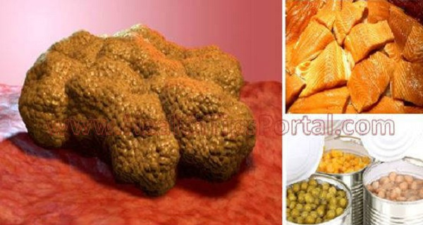 These Foods Make Cancer Cells Grow In Your Body! Stop Eating Them To Avoid Cancer!   HEALTHY FOOD ADVICE