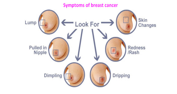 HOW CAN BREAST CANCER BE DETECTED   HEALTHY FOOD ADVICE