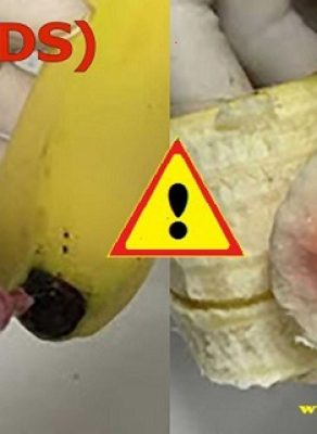 shocking-the-world-health-organization-have-alarmed-that-found-nearly-1-million-bananas-injected-with-hiv-aids