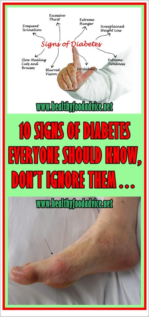10 SIGNS OF DIABETES EVERYONE SHOULD KNOW, DON'T IGNORE THEM…